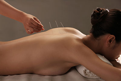 acupuncture-web